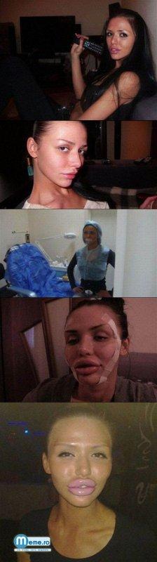 Botox Inainte si Dupa